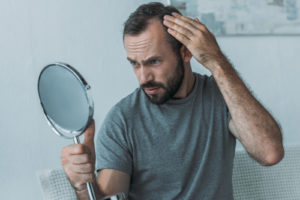 baldness-hair-loss
